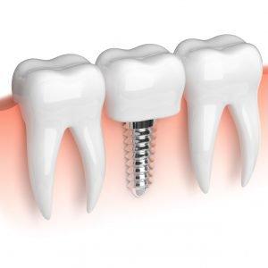 implanty stomatologiczne zębów