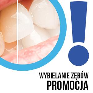 promocja na wybielanie zębów