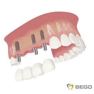 implanty z łącznikiem