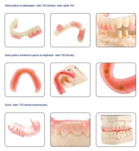 protezy-stomatologiczne-termplastyczne