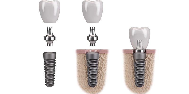podział implantów