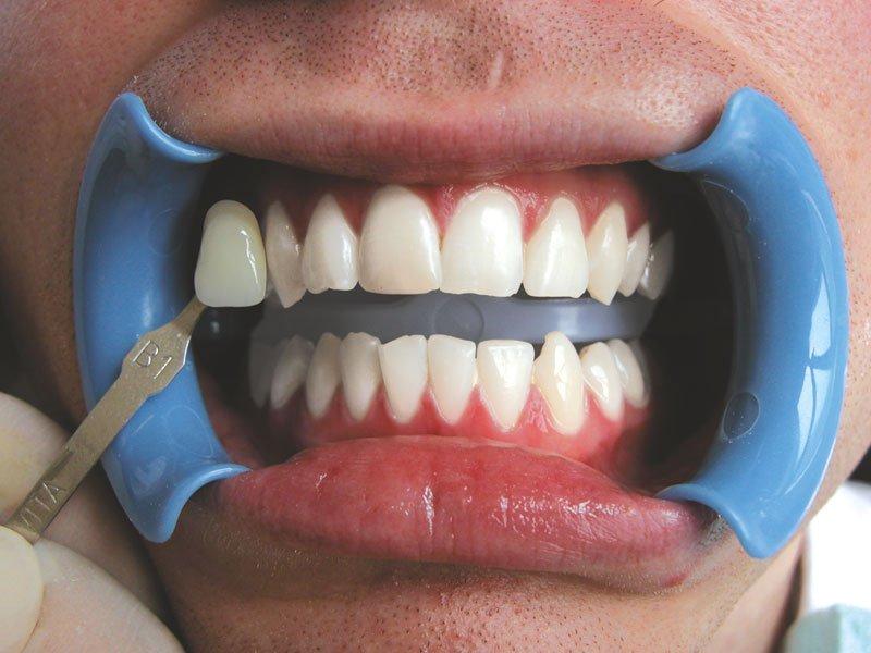 zabieg wybielania zębów metodą beyond efekt po